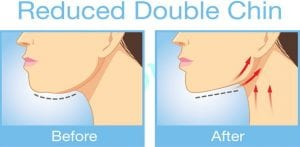 reduce-double-chin
