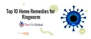 top-10-home-remedies-for-ringworm