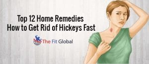 top-12-home-remedies-how-to-get-rid-of-hickeys-fast