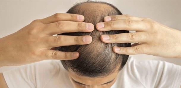 balding-prevention