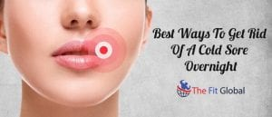 Best Ways To Get Rid Of A Cold Sore Overnight