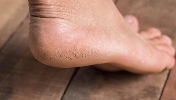 Heals cracked heels