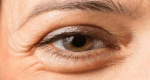 Home Remedies To Get Rid Of Eye Bags