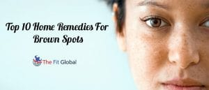Top 10 Home Remedies For Brown Spots