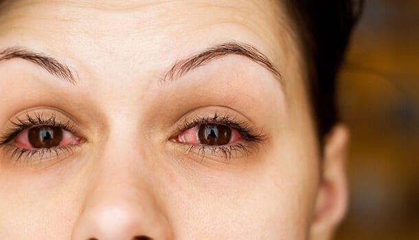 Treats Eye Disorders