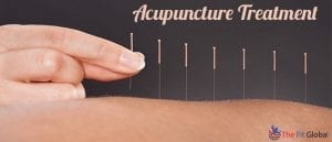 Best and Broad Alternate Therapy For Your Ailments – Acupuncture Treatment