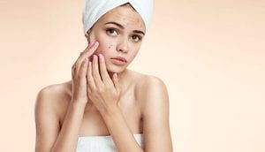 Treating Acne And Pimples