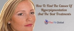 How To Find The Causes Of Hyperpigmentation And The Best Treatments