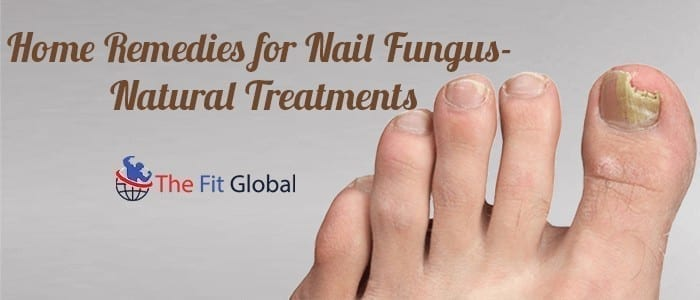 Home Remedies for Nail Fungus – Causes, Symptoms, and Treatments