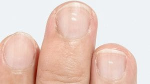 Remedies for Treating White Spots on Nails