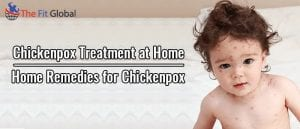 Chickenpox Treatment at Home Home Remedies for Chickenpox
