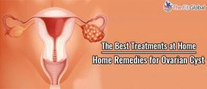 Home Remedies for Ovarian Cyst The Best Treatments at Home