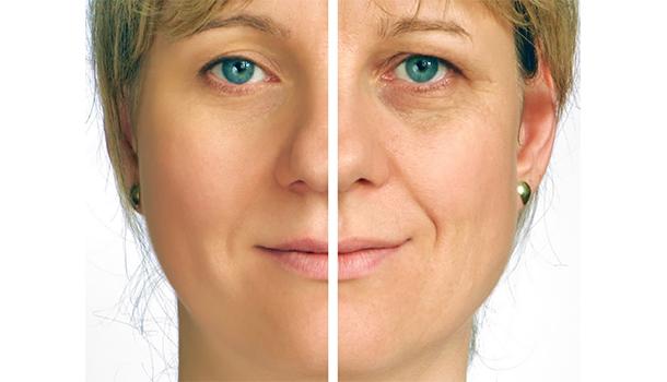 Prevents Wrinkles