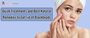 Quick Treatments and Best Natural Remedies to Get rid of blackheads