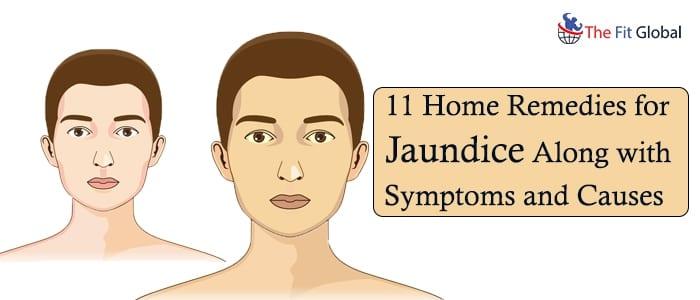 Home remedies for jaundice