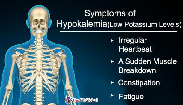 symptoms of Hypokalemia