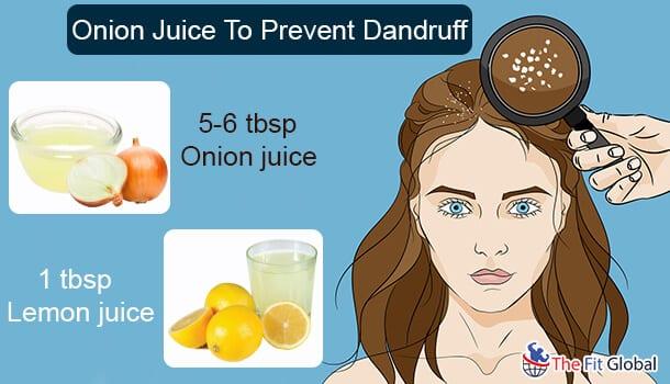Onion Juice To Prevent Dandruff