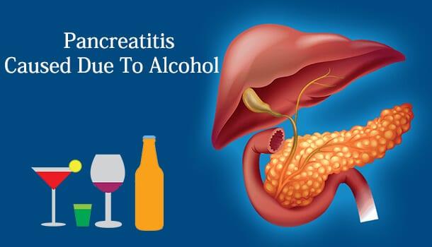 Pancreatitis Caused Due To Alcohol