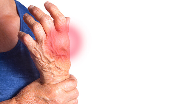 Ashwagandha For Rheumatoid Arthritis