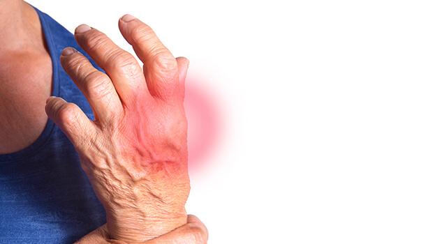 How Turmeric Tea Benefits Arthritis